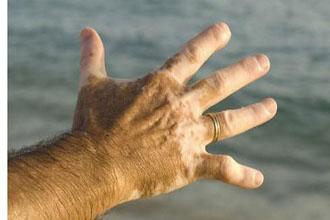 手部白癜风的发病原因有哪些